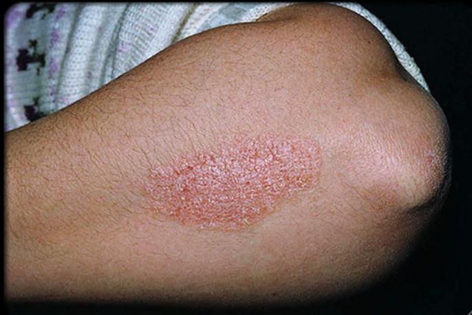 Điều trị khỏi bệnh vảy nến