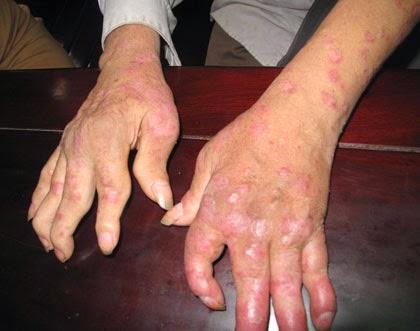 Triệu chứng vảy nến gây tổn thương xương khớp