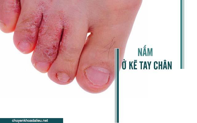 Bệnh nắm kẻ tay chân và những thông tin cần biết
