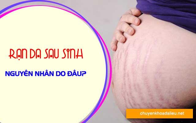 nguyên nhân rạn da sau sinh