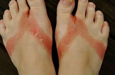 Nguyên nhân viêm da tiếp xúc là gì?