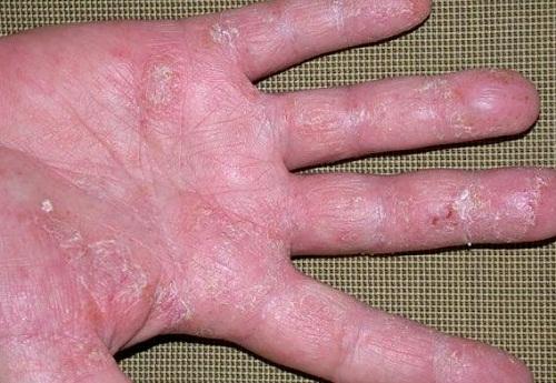 Cách chữa bệnh vẩy nến á sừng ở tay, chân khỏi hẳn