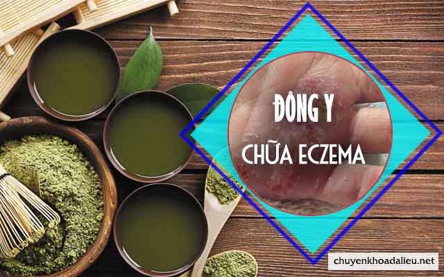 Chữa bệnh eczema bằng thuốc Đông y