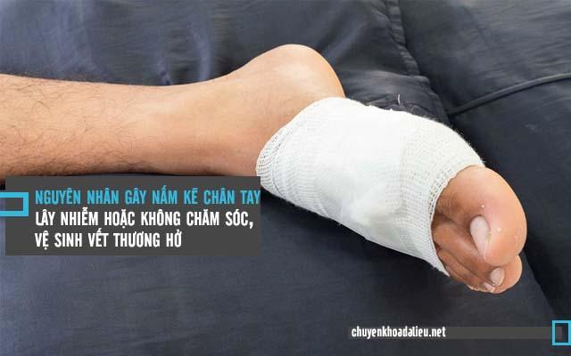 nguyên nhân bị nấm kẽ chân tay là do vết thương hở