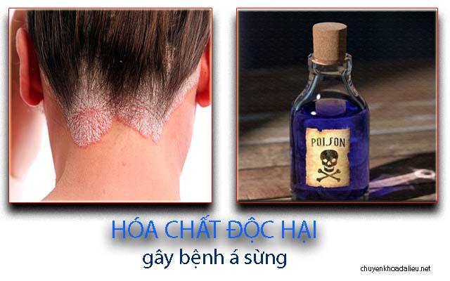 Nguyên nhân gây bệnh á sừng do tiếp xúc hóa chất độc hại