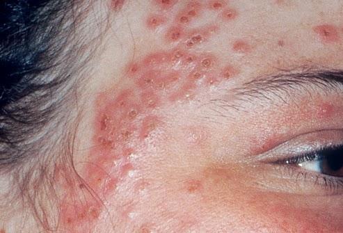 Cách chữa bệnh eczema hiệu quả nhất