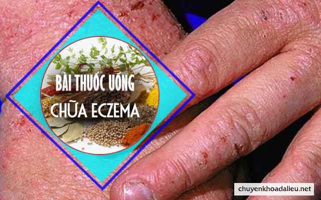 thuốc đông y chữa eczema hiệu quả