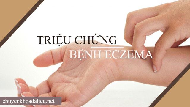 Triệu chứng bệnh eczema