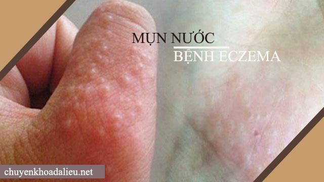 Mụn nước - Dấu hiệu của bệnh eczema