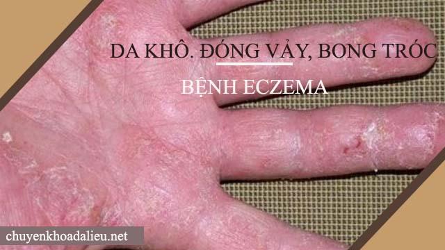 eczema làm da khô, đóng vảy và bong tróc