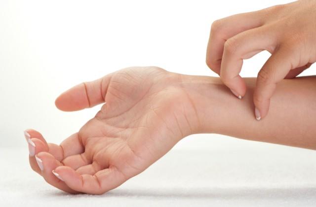ngứa da là triệu chứng bệnh eczema