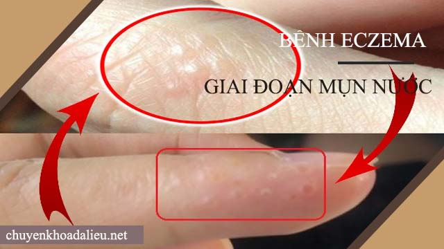 Dấu hiệu của bệnh eczema giai đoạn mụn nước