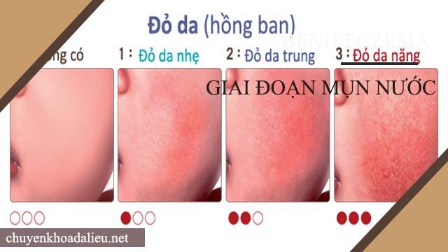 Triệu chứng của bệnh eczema giai đoạn hồng ban