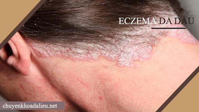 Bệnh Eczema da dầu
