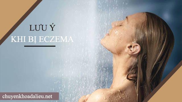 bị eczema nên làm gì