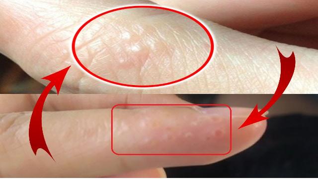 Nổi mụn nước là triệu chứng bệnh eczema