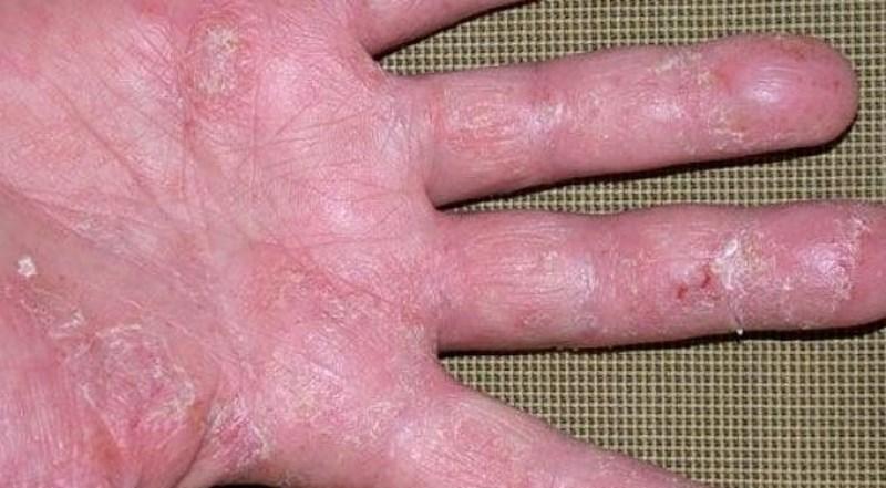 Da khô và bong tróc là biểu hiện của eczema