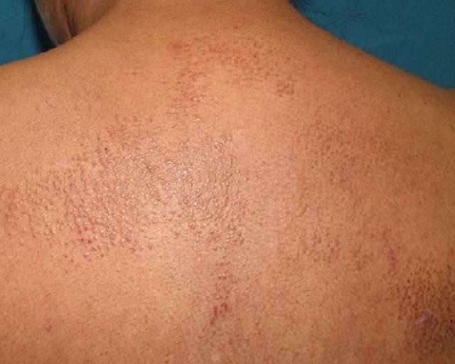 da bị liken hóa là triệu chứng của bệnh eczema