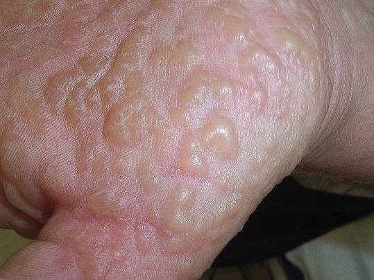 Bệnh tổ đỉa có lây nhiễm sang người khác không ?
