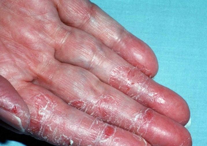 Triệu chứng viêm da tiếp xúc ở tay