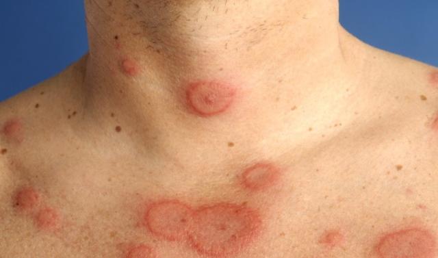 Triệu chứng viêm da tiếp xúc