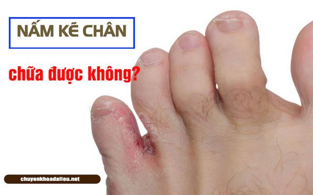 Bệnh nấm kẽ chân có chữa được không?