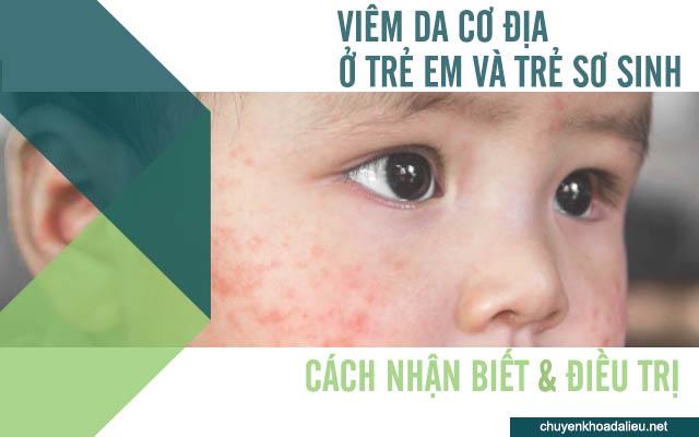 bệnh viêm da cơ địa ở trẻ em và trẻ sơ sinh