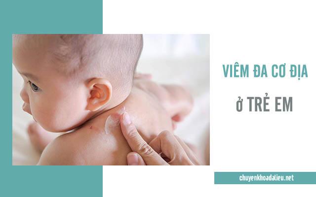 Trẻ em là đối tượng rất dễ mắc bệnh viêm da cơ địa