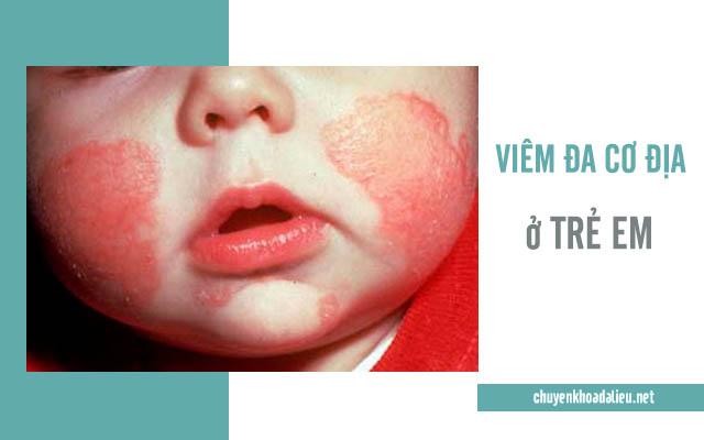 Hình ảnh bệnh chuyển biến nặng lan ra cả khuôn mặt của bé