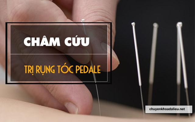 châm cứu để điều trị rụng tóc Pedale