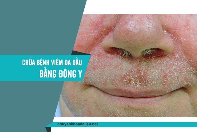 chữa bệnh viêm da dầu bằng đông y được không