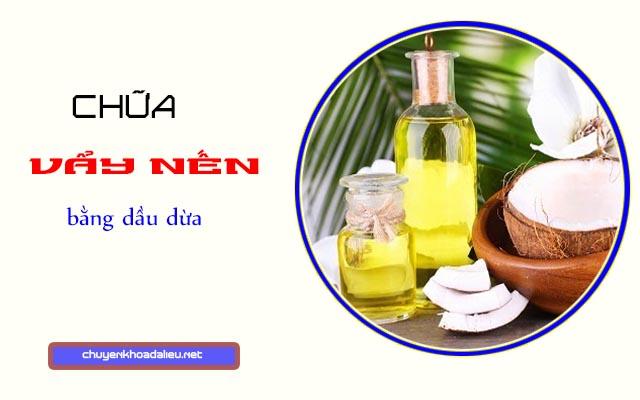 Chữa vẩy nến bằng dầu dừa