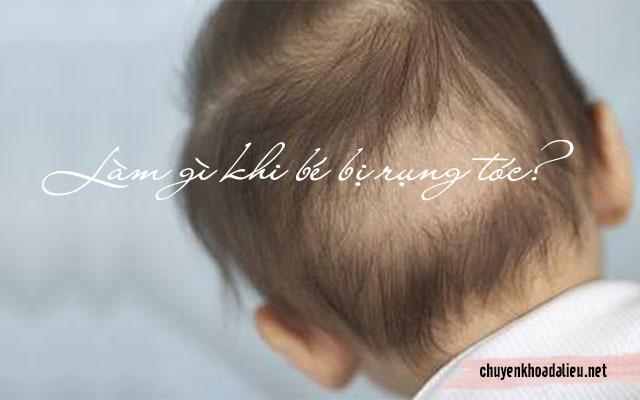 làm gì khi bé rụng tóc