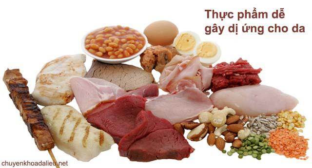 Nguyên nhân gây bệnh viêm da dị ứng có thể do thực phẩm
