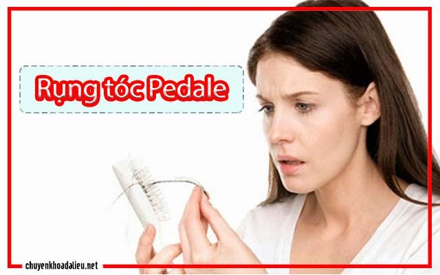 Rụng tóc Pedale là gì
