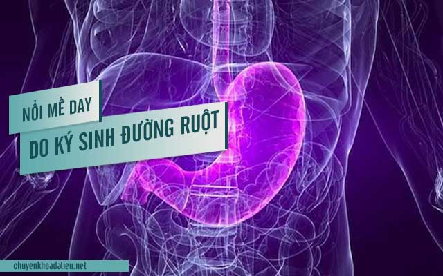 Nguyên nhân nổi mề đay do nhiễm vi khuẩn đường ruột
