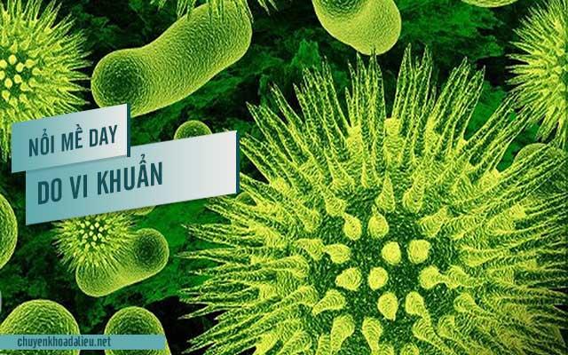 Nguyên nhân bị nổi mề đay do nhiễm vi khuẩn, virus