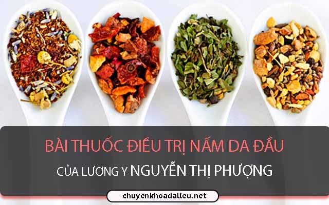 Bài thuốc điều trị nấm da đầu của lương y Nguyễn Thị Phượng
