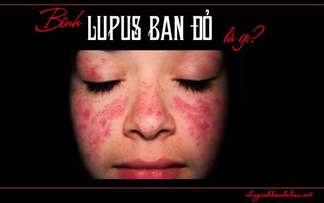 Một số thông tin cần biết về bệnh Lupus đỏ