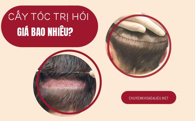 bảng giá cấy tóc trị hói