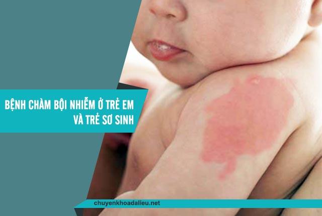chàm bội nhiễm ở trẻ em