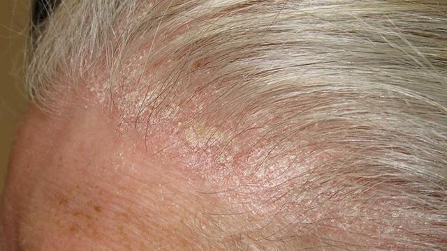 Da đầu nổi nhiều mảng vảy trắng là triệu chứng của á sừng da đầu