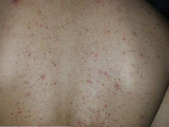 Mẹo chữa viêm lỗ chân lông ở lưng hiệu quả