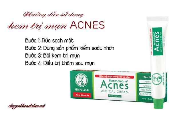 Cách sử dụng kem trị mụn Acnes