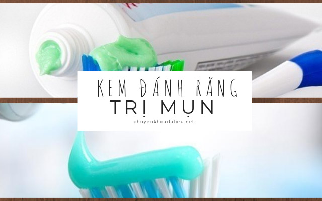 trị mụn bằng kem đánh răng1