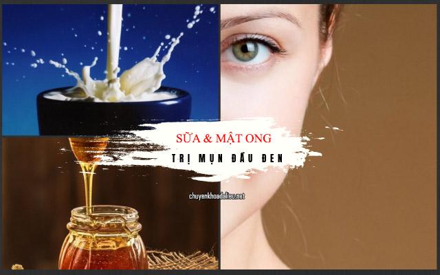 Cách trị mụn đầu đen tại nhà bằng sữa và mật ong