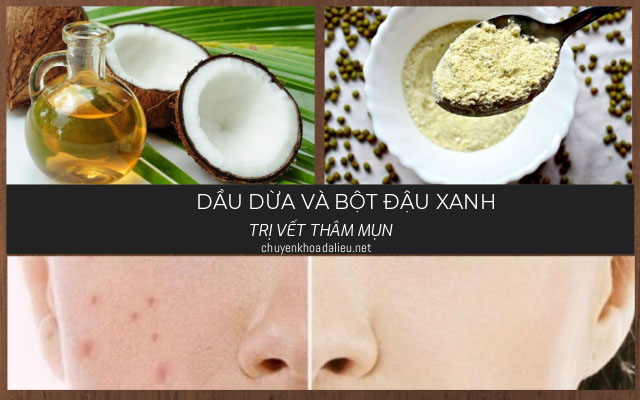 trị vết thâm mụn bằng dầu dừa và bột đậu xanh
