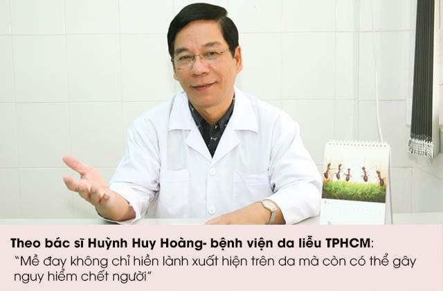 Bác sĩ Huỳnh Huy Hoàng tư vấn về bệnh mề đay