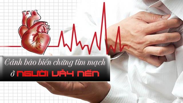 Biến chứng tim mạch ở bệnh nhân bị vẩy nến