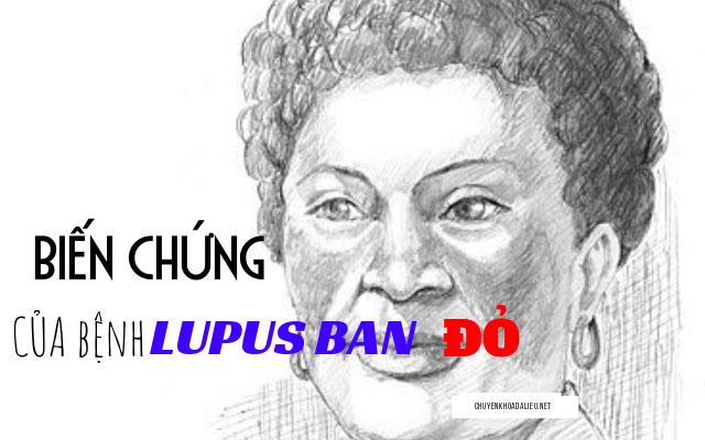 biến chứng của lupus ban đỏ